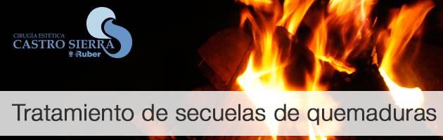 Tratamiento quemaduras Madrid