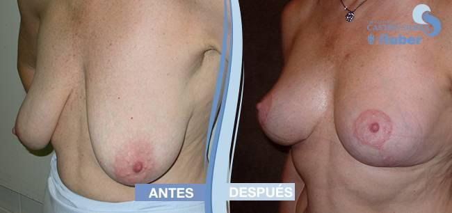 Fotografía antes y después elevación de senos