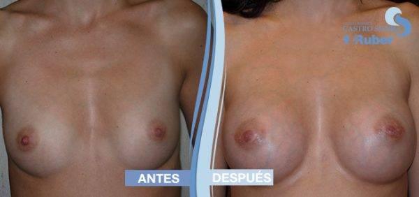 Tetas aumento antes y después. Clínica Ruber Madrid