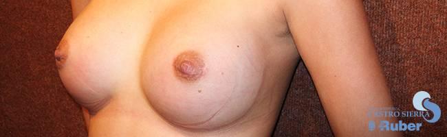 Fotos antes y después aumento de senos España