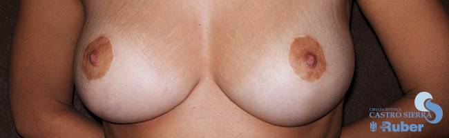 Reducción de mamoplastia
