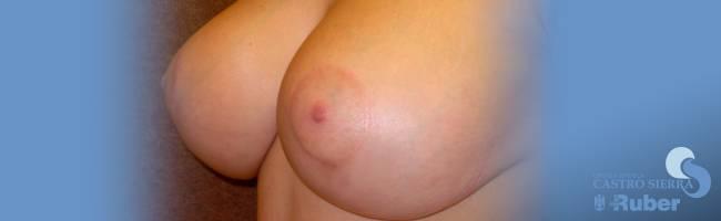 Postoperatorio elevación mamas