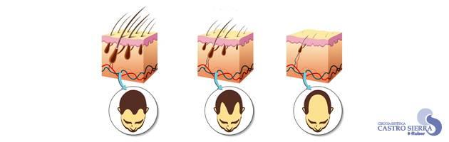 alopecia-glosario