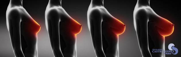 mamoplastia-aumento-glosario
