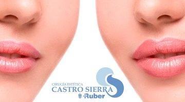 Aumento de labios. Clínica Ruber Madrid. Estética Castro Sierra