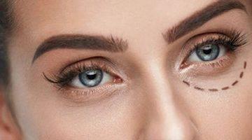 blefaroplastia cirugia ojos madrid