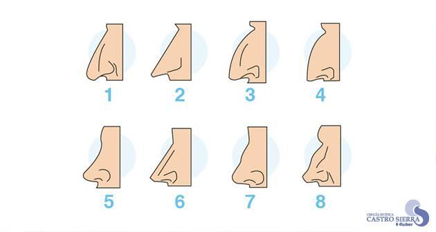 clases nariz rinoplastia madrid