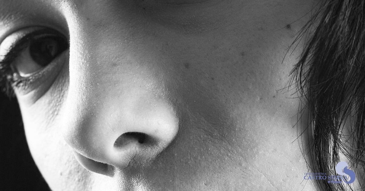 rinoplastia tipos nariz