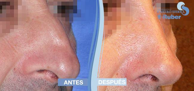 comparar resultados rinoplastia