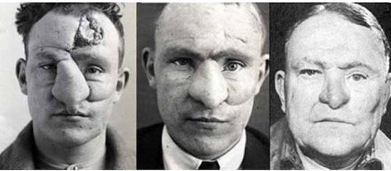 Harold-Gillies-el-médico-que-reconstruía-caras-en-la-Primera-Guerra-Mundial