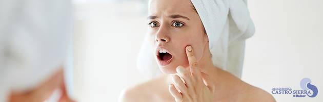 acné y sus causas