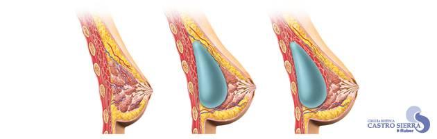 tipos y tamaños de prótesis