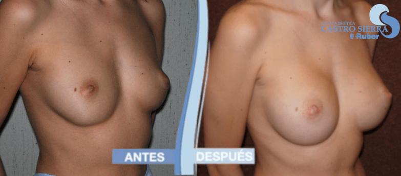 antes y después de aumento de pecho