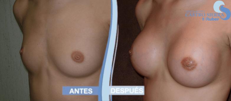 fotos aumento de pecho antes y despues