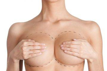 cirugía plástica de mamas