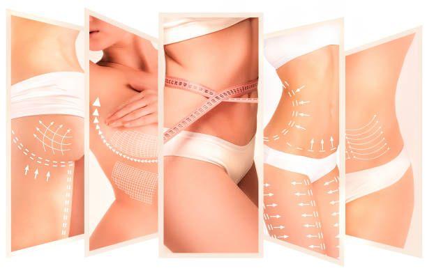 zonas liposuccion