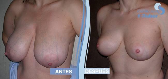 Operación de reducción de mamas