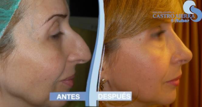Operación de rinoplastia antes y después